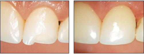 «зубастые» приметы: народные поверья и ритуалы, связанные с зубами