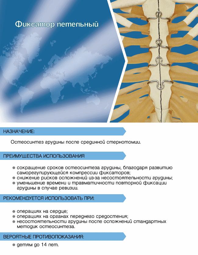 Операция при деформации грудной клетки, виды искривления, реабилитация