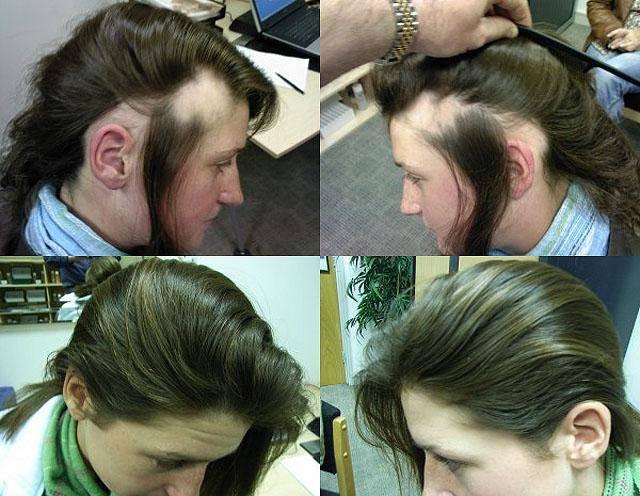Очаговая алопеция у женщин – что это такое и как лечить выпадение волос