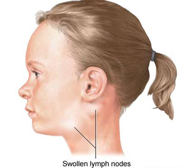 Что делать, если воспалился лимфоузел за ухом?