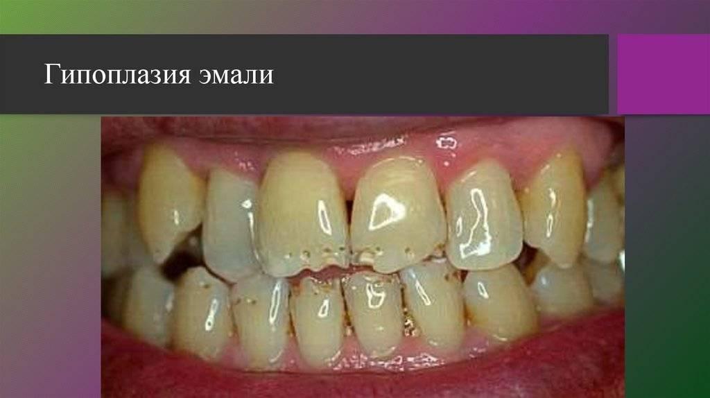 Аномалии развития зубов: формы и виды патологии
