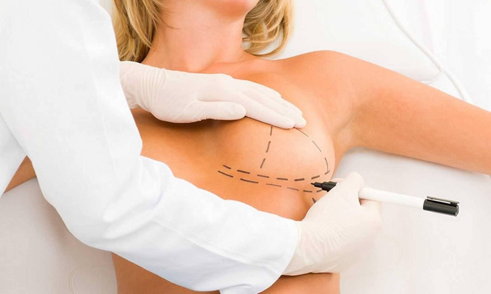 Восстановительный период (реабилитация) после маммопластики