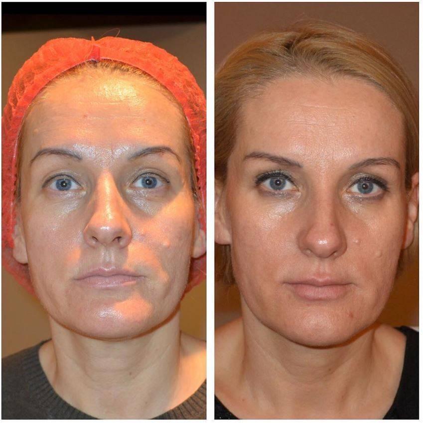 Мезотерапия: отзывы, виды, фото лица до и после процедуры