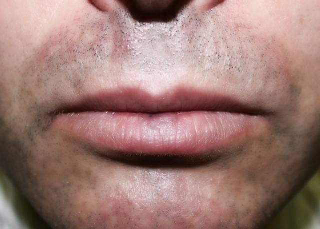 Почему появляется черная точка на губах