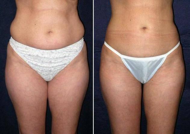 Миостимуляция для похудения