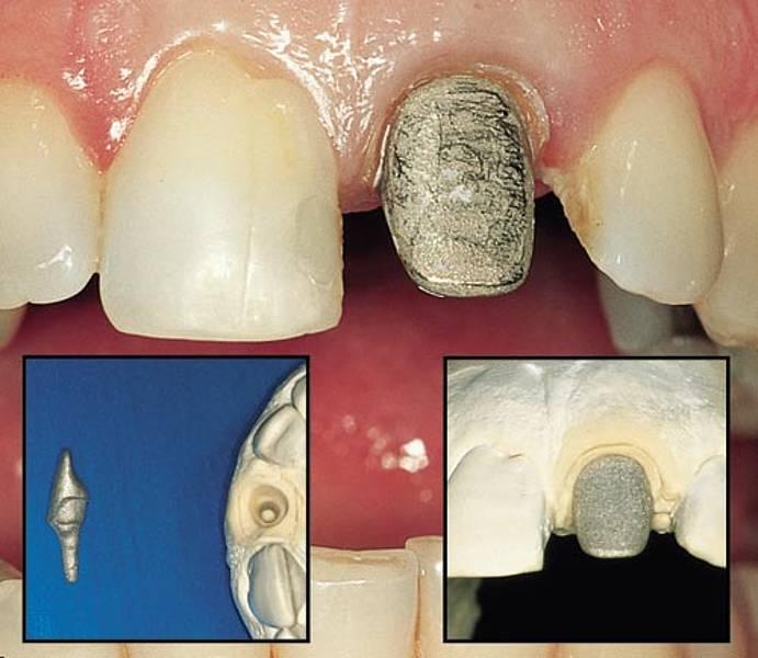 Как ставят коронку на зуб: этапы и процесс установки, подготовка зуба, больно ли ставить