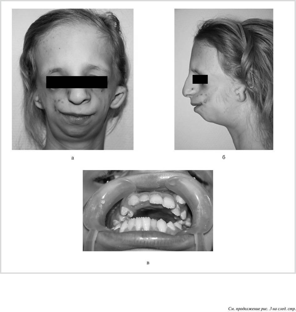 Гипоплозия( микрогения) нижней челюсти 22нед 5 дней. продолжение наших с пупсом моральных мучений…