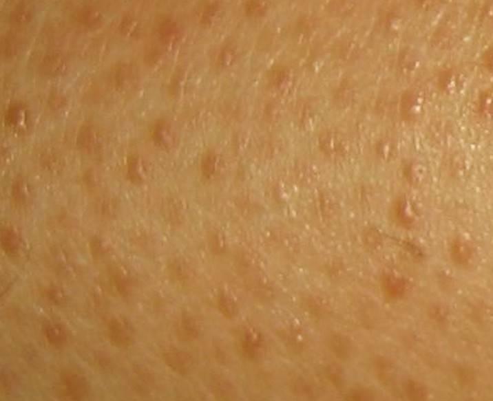Гусиная кожа на шее – как избавиться от этой проблемы