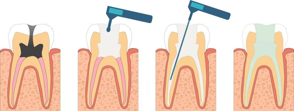 Почему депульпированный зуб болит при нажатии и сколько дней это длится