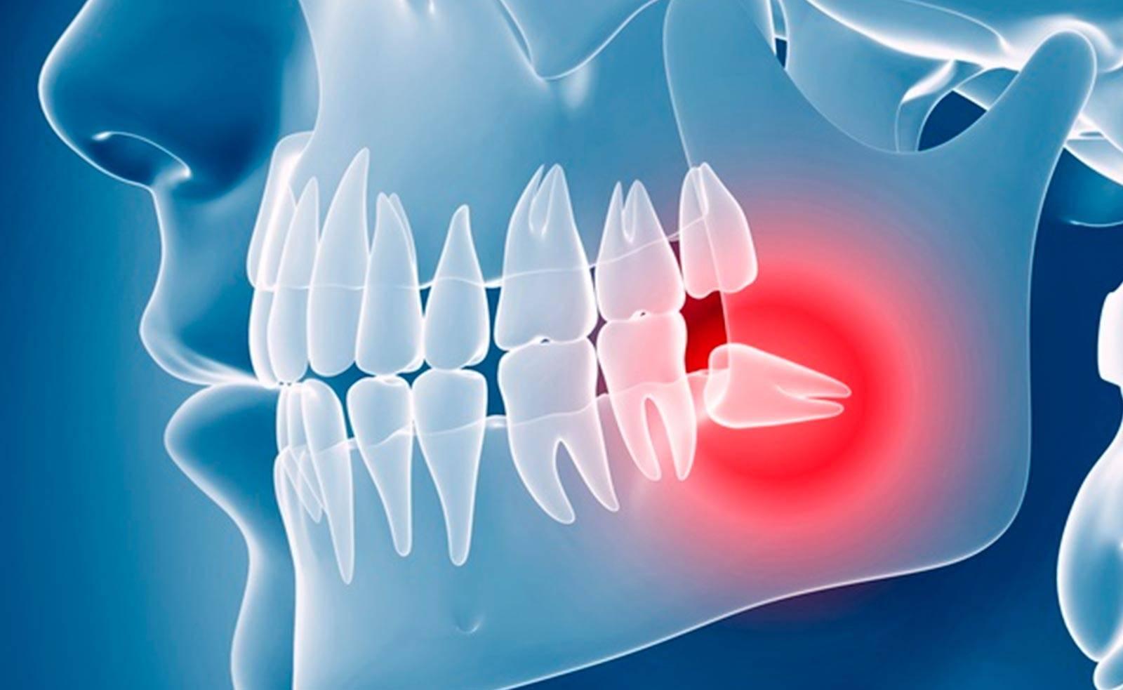 Больно ли удалять зуб мудрости и чего ожидать после окончания заморозки?