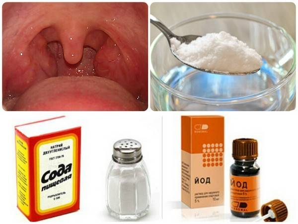 Как сделать содовый раствор для полоскания рта