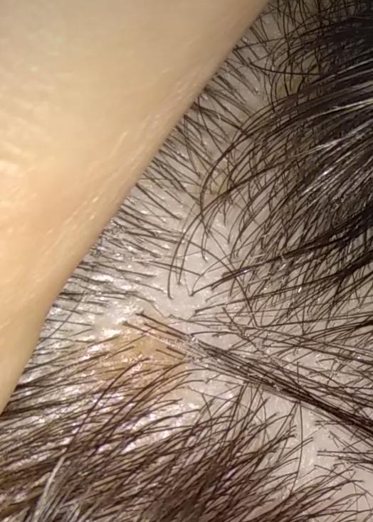 Причины и лечение пятен на коже коричневого цвета: на спине, ногах, руках, животе. фото