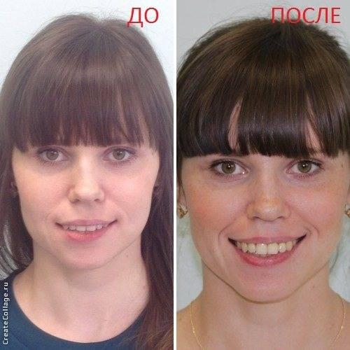 Передние зубы стали выпирать вперед