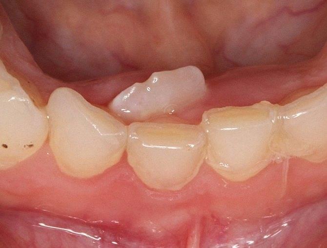 Желтые зубы: причины и способы устранения