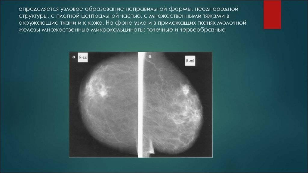 Очаговый или локальный фиброз молочных желез и его лечение