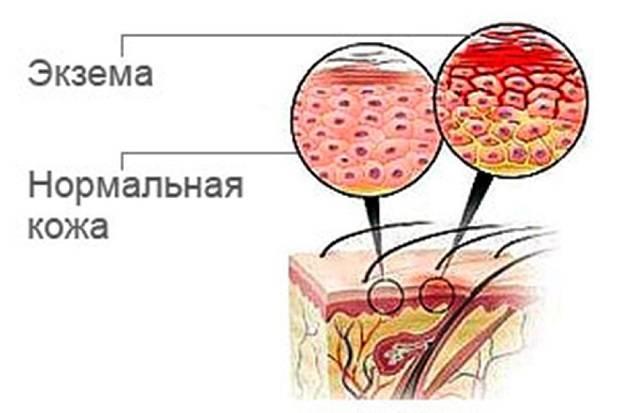 Тилотическая (роговая) экзема — лечение, причины, симптомы