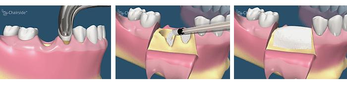 Когда неприятные ощущения не являются нормой: осложнения после удаления зуба