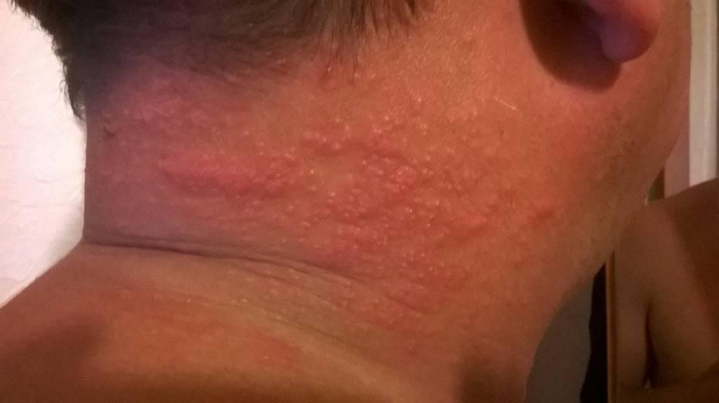 Почему чешется лицо и шея спереди под подбородком