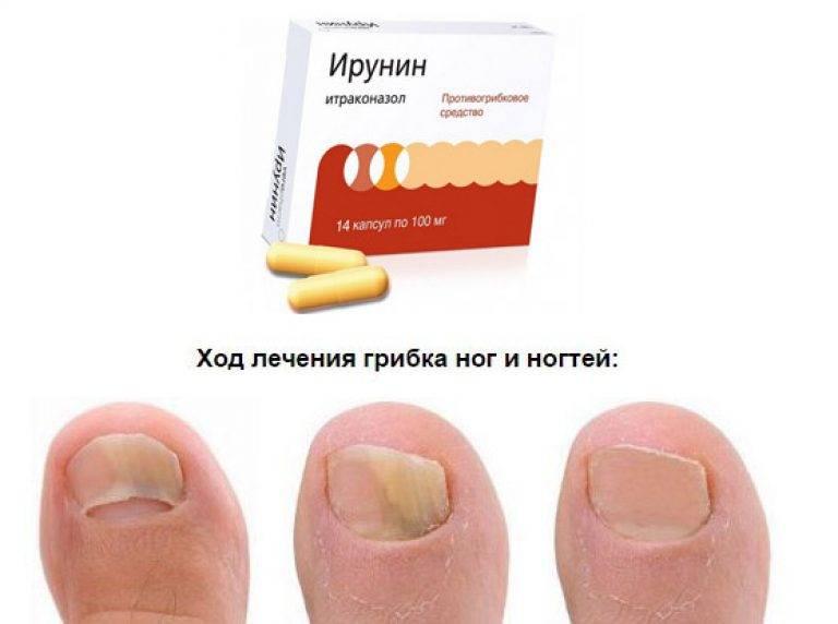 Лечение грибка ногтей в домашних условиях. препараты, лаки, антифунгальные лекарства. цены, отзывы