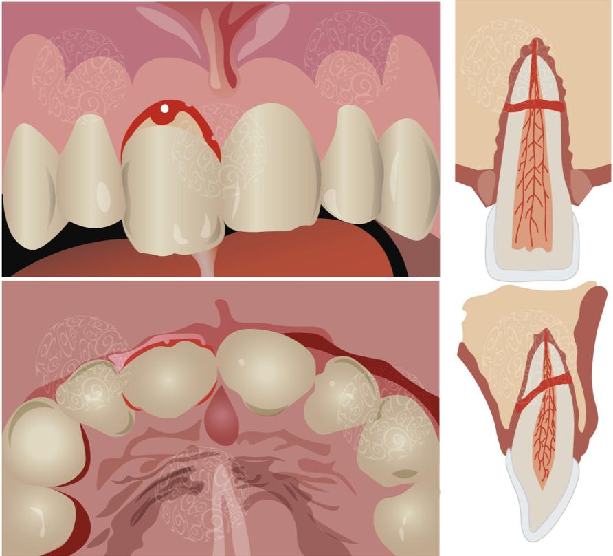 Перелом корня зуба под коронкой симптомы
