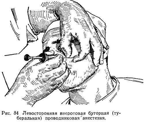 Метод инфильтрационной анестезии в стоматологии: выполнение вмешательства на верхней и нижней челюсти, осложнения