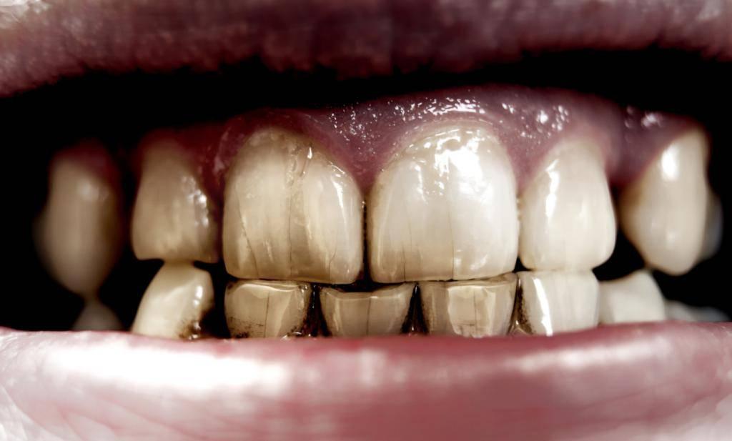 Причины тетрациклиновых зубов, их лечение