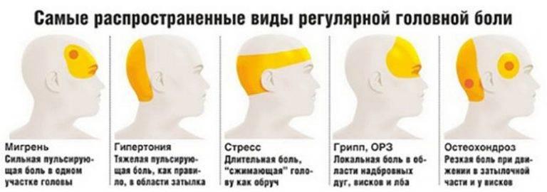 Из-за чего возникают пульсирующие боли в голове и как с ними бороться