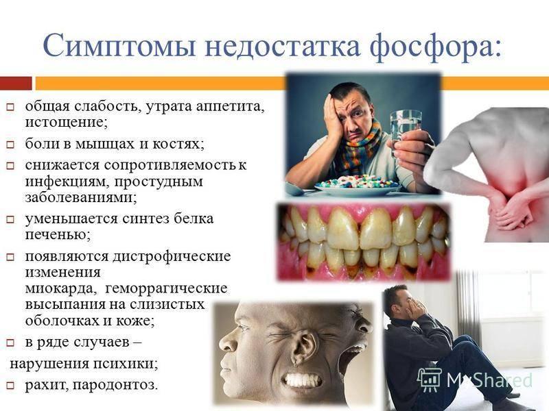 Дефицит витамина а и его последствия, как восполнить нехватку в организме