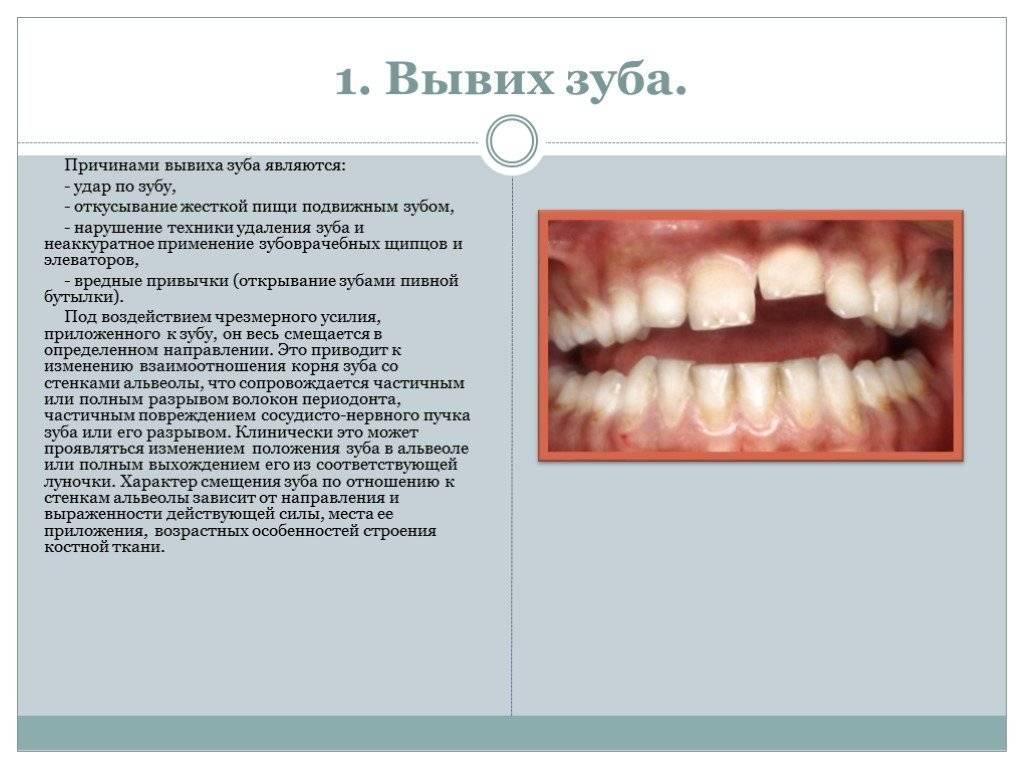 Вколоченный, полный и неполный вывих зуба: симптомы, первая помощь, лечение