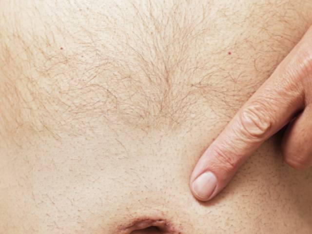 Что такое моллюск контагиозный, и как он проявляется на интимных зонах или лице у взрослых и у детей на спине, руках или веках: можно ли его вылечить таблетками