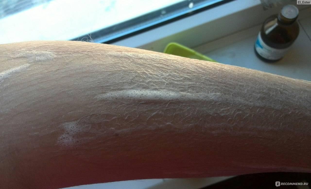Удаление волос перекисью водорода