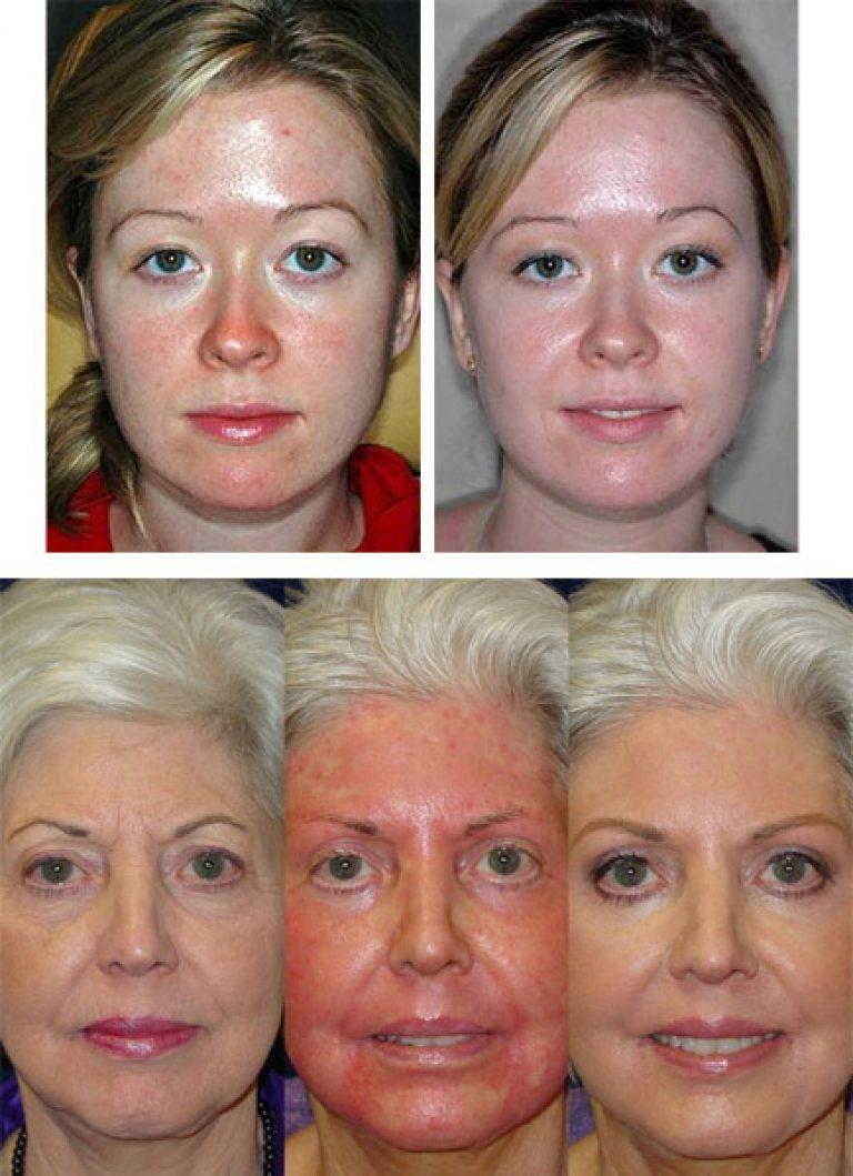 Реабилитационный уход за кожей лица после пилинга тса