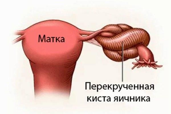 Особенности лечения кисты яичника в менопаузе