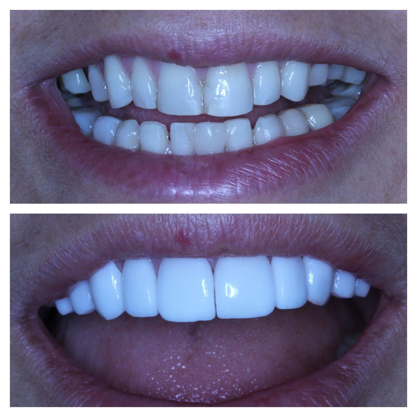 Плюсы и минусы установки виниров на зубы – разбираем все нюансы процесса