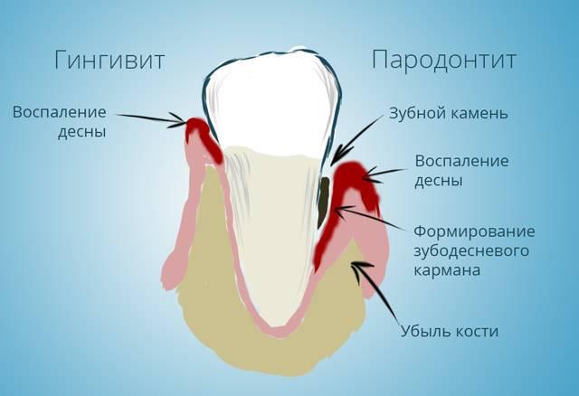 Почему болят все зубы сразу (одновременно) и что нужно делать