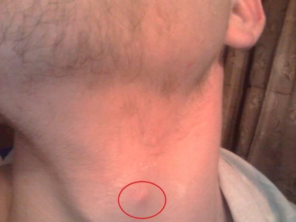 Уплотнение в виде шарика под кожей в паху, под мышкой, на шее, подбородке, щеке, спине. что это, как убрать