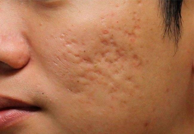 Причины и лечение сыпи на лице у женщин, мужчин