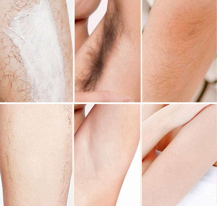 Бритье подмышек у мужчин и женщин: что делать с раздражением и как ухаживать за кожей