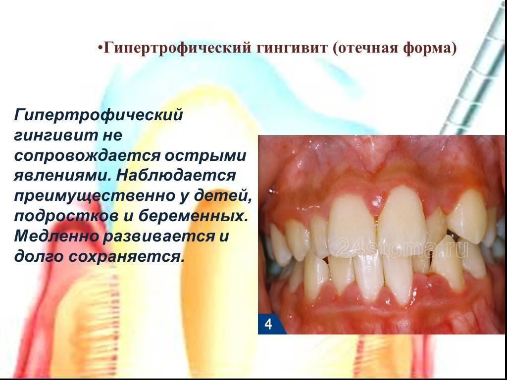 Острый катаральный гингивит