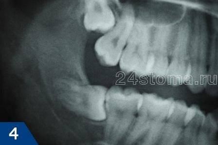 Лечить или удалять зуб в случае кариеса корня: особенности поражения цемента