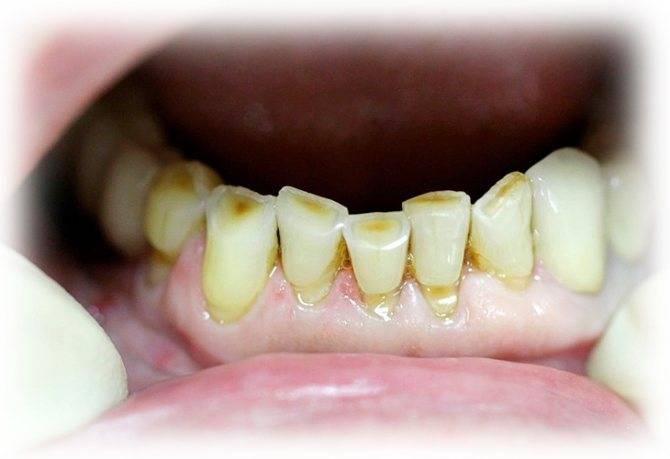 Что делать, если у человека крошатся зубы?