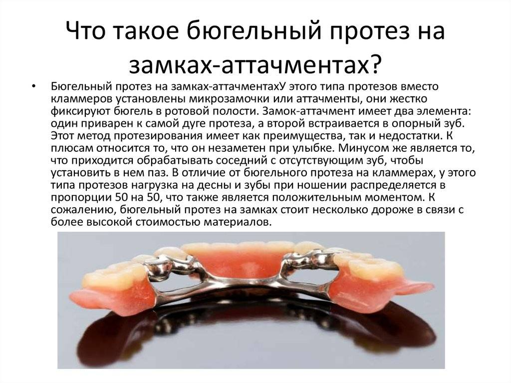 Какие зубные протезы лучше при полной потере зубов