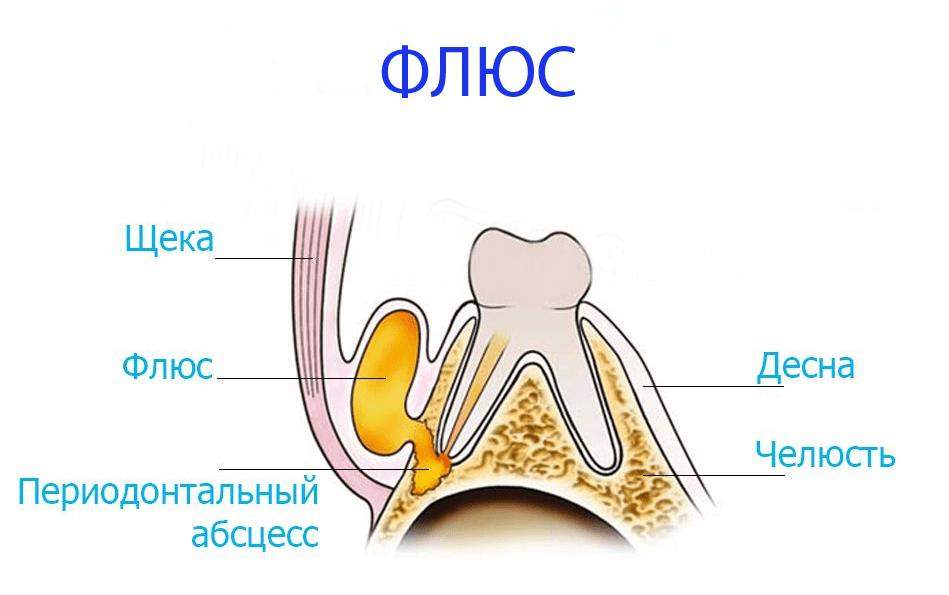 Флюс зубной: быстро снять опухоль