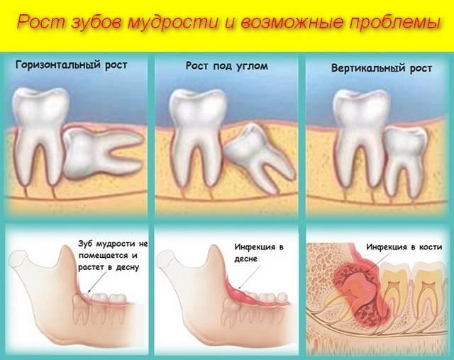 Что делать, если зуб сломался, а в десне остался корень: можно ли восстановить зубную единицу?