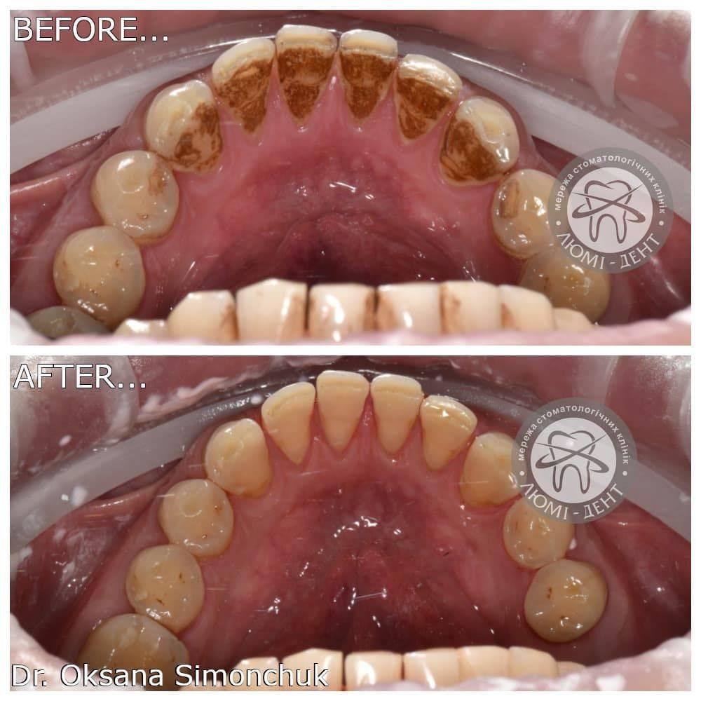 Ультразвуковая чистка зубов от зубного камня