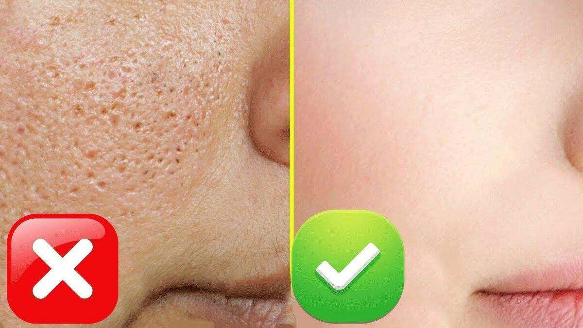 Как избавиться от жирного блеска на лице: причины и лучшие маски