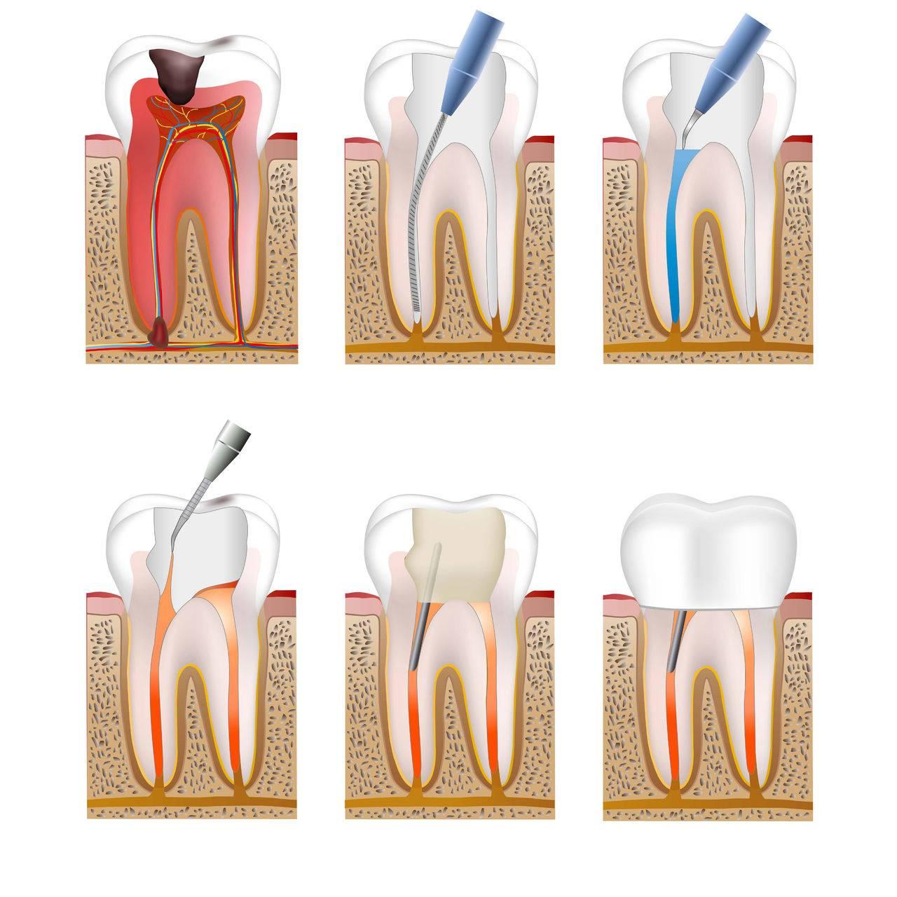 Болит десна под коронкой и зуб, если нерв удален: что делать при воспалении