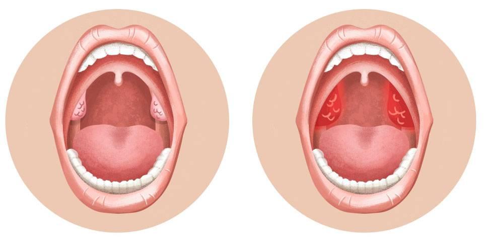 Белый и желтый налет в горле на миндалинах и гландах у взрослых и детей (с температурой, болью и без)