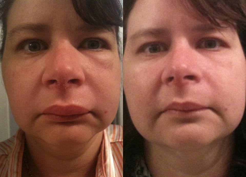 Сильный отек после удаления зуба: норма или патология?