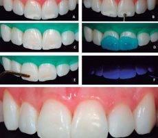 Способы восстановления и обновления зубной эмали